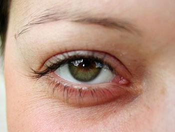 eye-open1